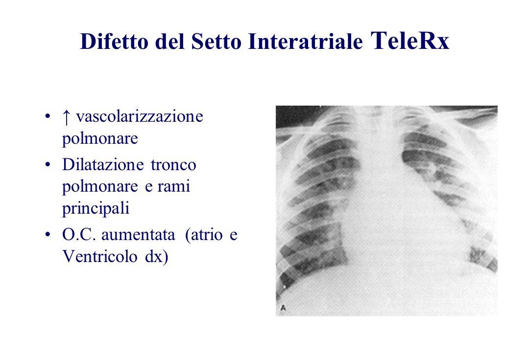 Difetto del Setto Interatriale TeleRx vascolarizzazione polmonare Dilatazione tronco polmonare e rami principali O.C. aumentata (atrio e Ventricolo dx