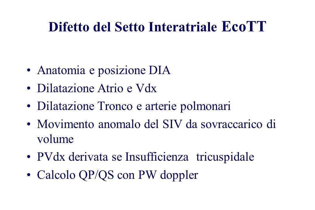 Difetto del Setto Interatriale EcoTT Anatomia e posizione DIA Dilatazione Atrio e Vdx Dilatazione Tronco e arterie polmonari Movimento anomalo del SIV