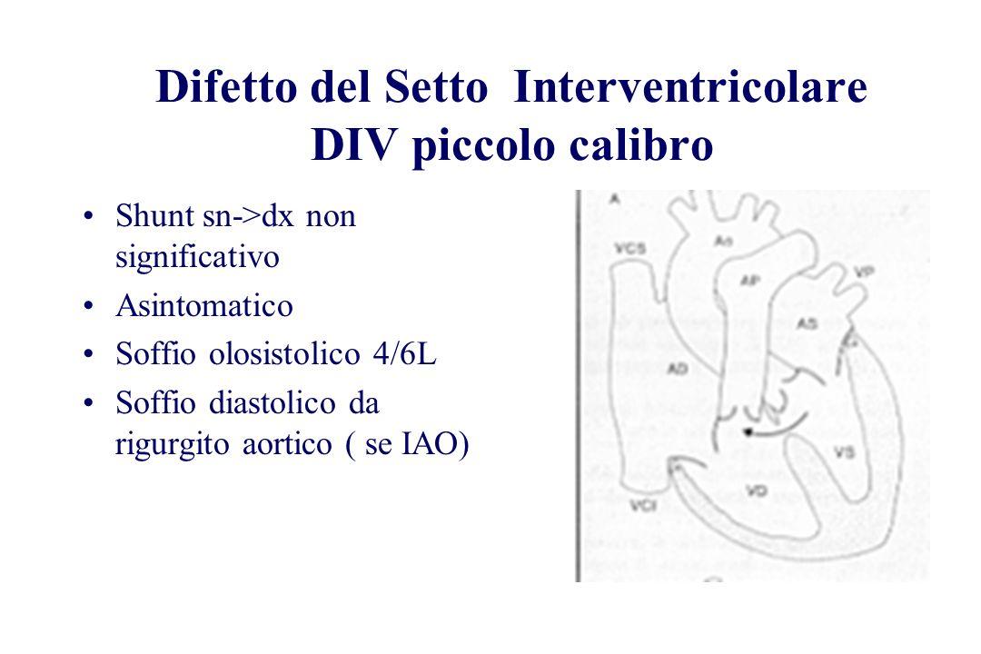 Difetto del Setto Interventricolare DIV piccolo calibro Shunt sn->dx non significativo Asintomatico Soffio olosistolico 4/6L Soffio diastolico da rigu