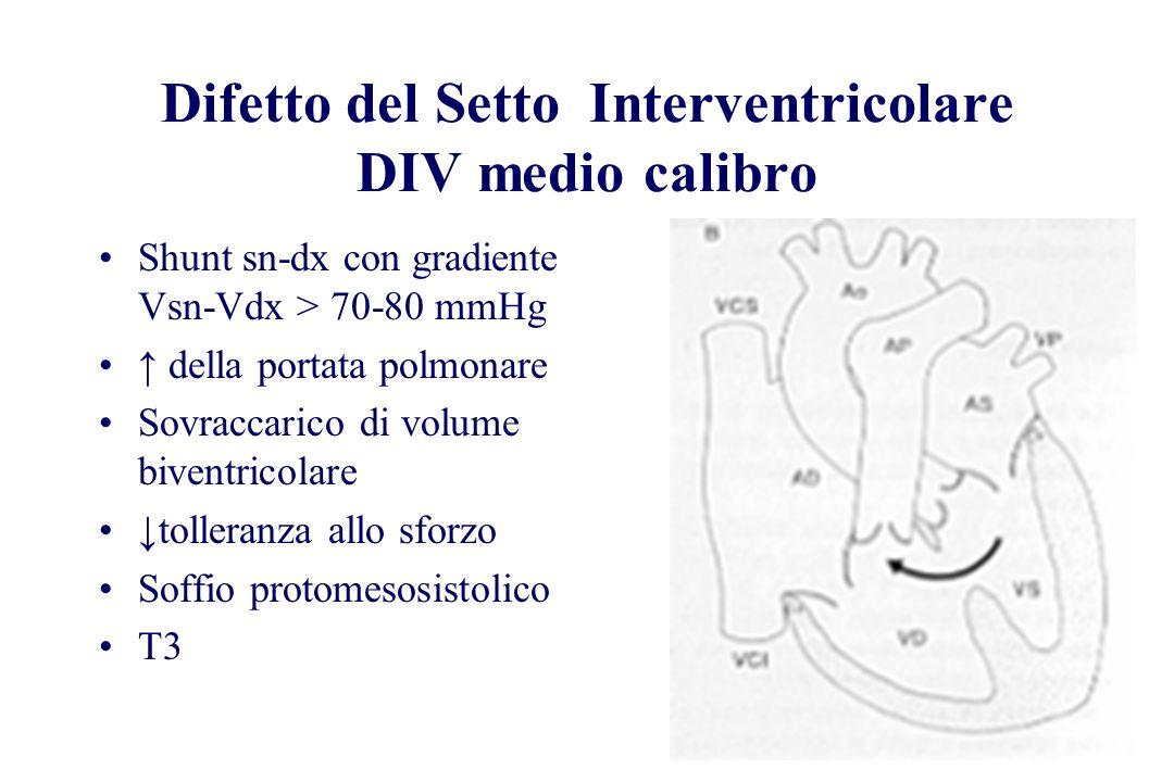 Difetto del Setto Interventricolare DIV medio calibro Shunt sn-dx con gradiente Vsn-Vdx > 70-80 mmHg della portata polmonare Sovraccarico di volume bi