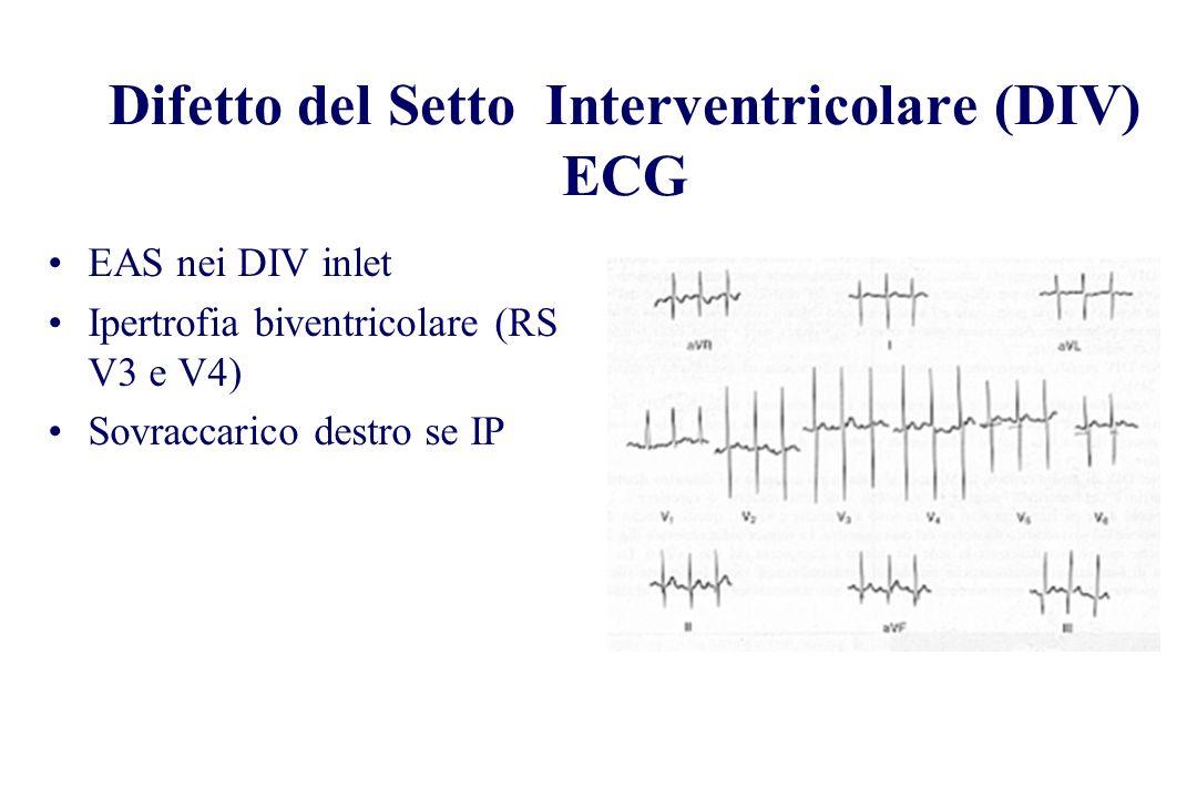 EAS nei DIV inlet Ipertrofia biventricolare (RS V3 e V4) Sovraccarico destro se IP Difetto del Setto Interventricolare (DIV) ECG