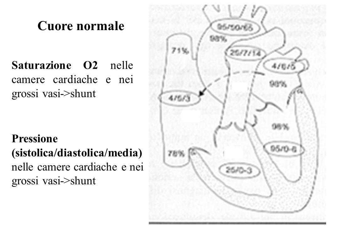 Cuore normale Saturazione O2 nelle camere cardiache e nei grossi vasi->shunt Pressione (sistolica/diastolica/media) nelle camere cardiache e nei gross