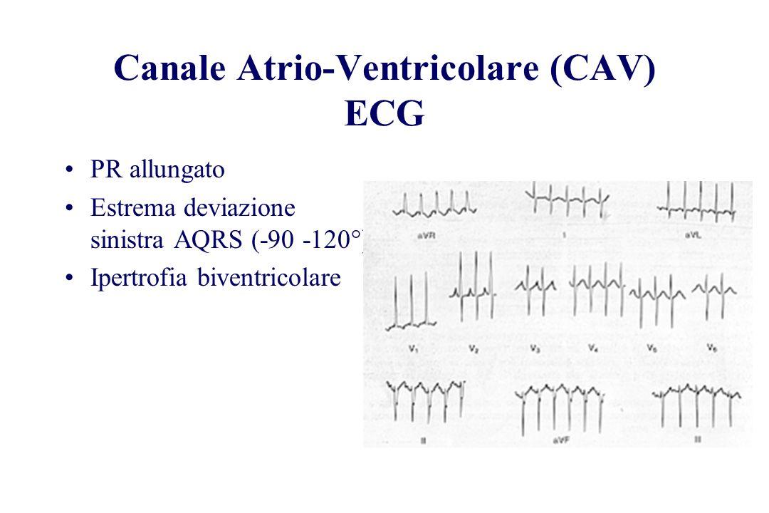 PR allungato Estrema deviazione sinistra AQRS (-90 -120°) Ipertrofia biventricolare Canale Atrio-Ventricolare (CAV) ECG