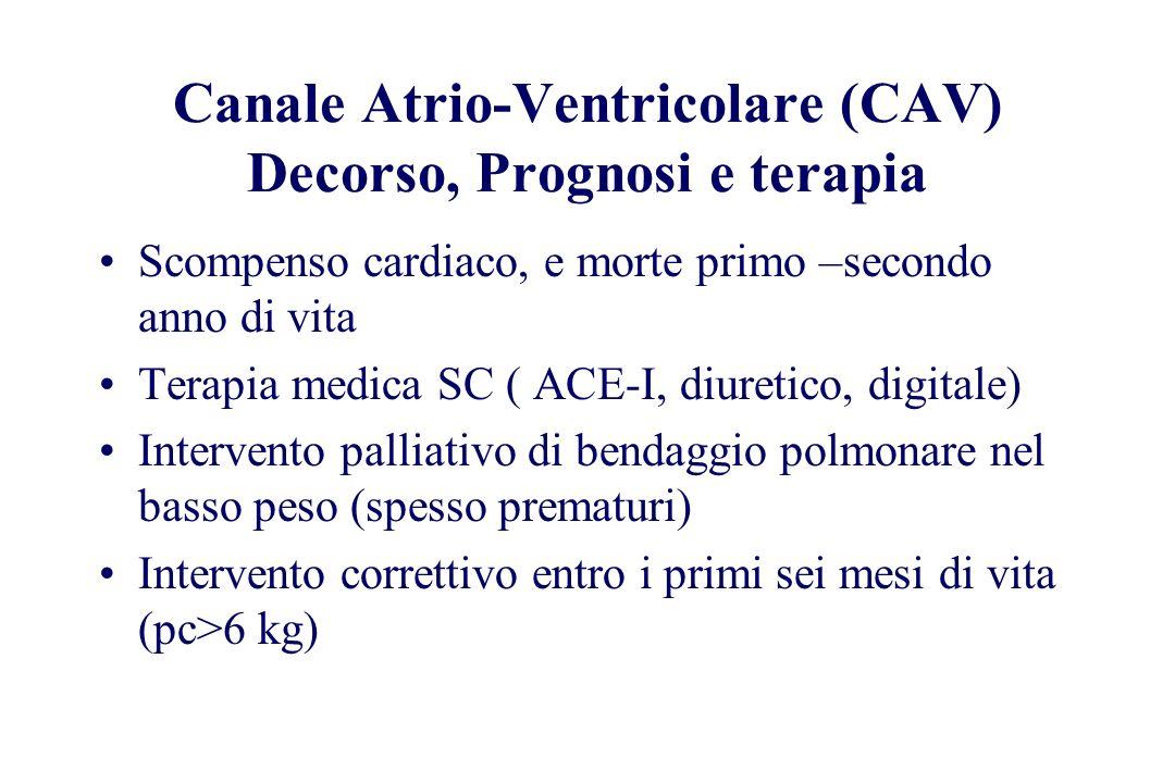 Canale Atrio-Ventricolare (CAV) Decorso, Prognosi e terapia Scompenso cardiaco, e morte primo –secondo anno di vita Terapia medica SC ( ACE-I, diureti