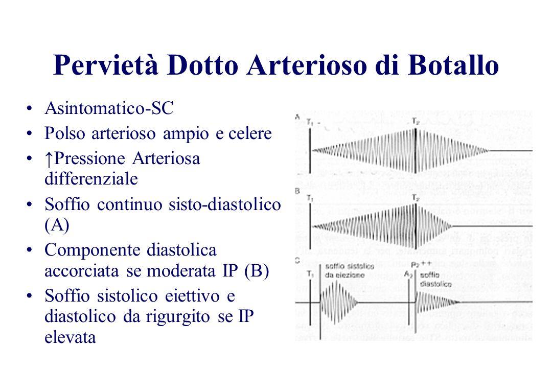 Asintomatico-SC Polso arterioso ampio e celere Pressione Arteriosa differenziale Soffio continuo sisto-diastolico (A) Componente diastolica accorciata