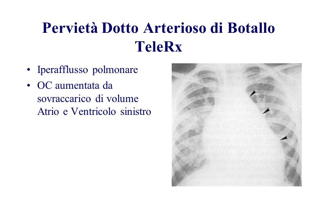 Pervietà Dotto Arterioso di Botallo TeleRx Iperafflusso polmonare OC aumentata da sovraccarico di volume Atrio e Ventricolo sinistro