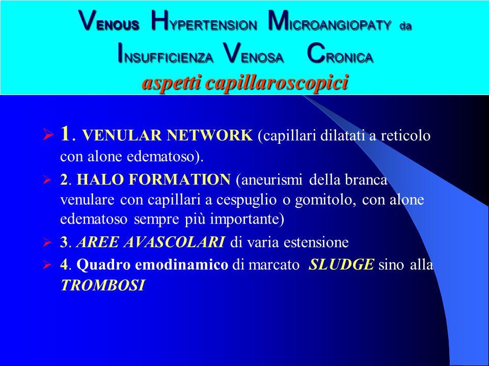 V ENOUS H YPERTENSION M ICROANGIOPATY da I NSUFFICIENZA V ENOSA C RONICA aspetti capillaroscopici 1. VENULAR NETWORK (capillari dilatati a reticolo co