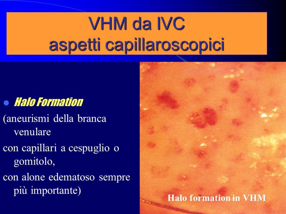 Halo Formation (aneurismi della branca venulare con capillari a cespuglio o gomitolo, con alone edematoso sempre più importante) Halo formation in VHM