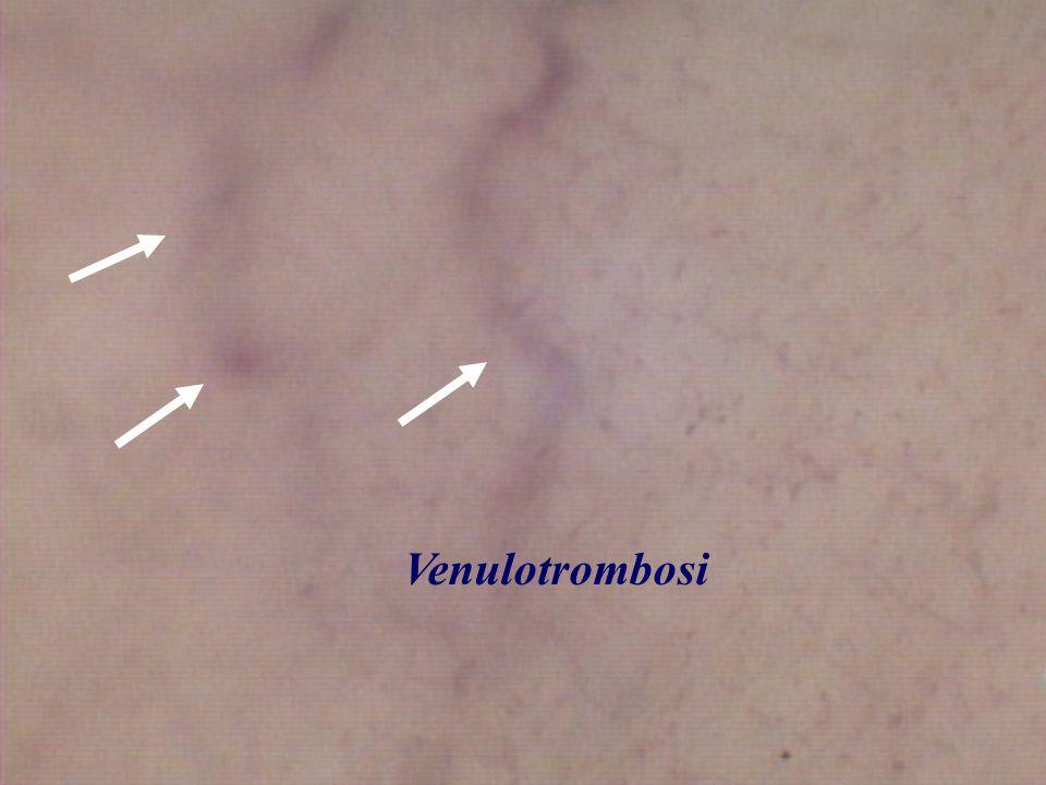 Venulotrombosi
