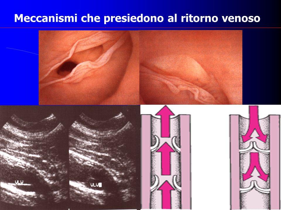 Insufficienza venosa cronica e danno valvolare Sindrome post trombotica Varici essenziali Displasie arterovenose