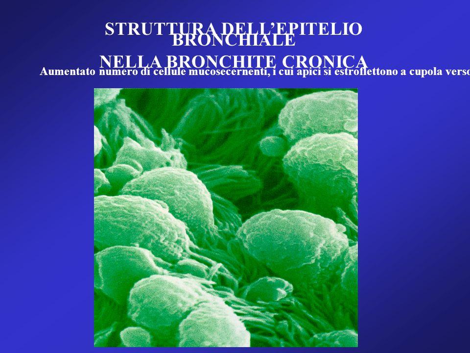 STRUTTURA DELLEPITELIO BRONCHIALE NELLA BRONCHITE CRONICA Aumentato numero di cellule mucosecernenti, i cui apici si estroflettono a cupola verso il l