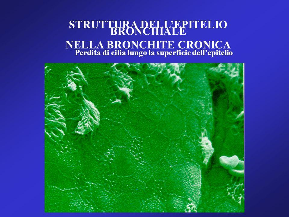 STRUTTURA DELLEPITELIO BRONCHIALE NELLA BRONCHITE CRONICA Perdita di cilia lungo la superficie dellepitelio