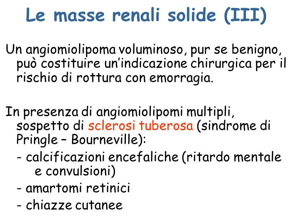 Le masse renali solide (III) Un angiomiolipoma voluminoso, pur se benigno, può costituire unindicazione chirurgica per il rischio di rottura con emorr
