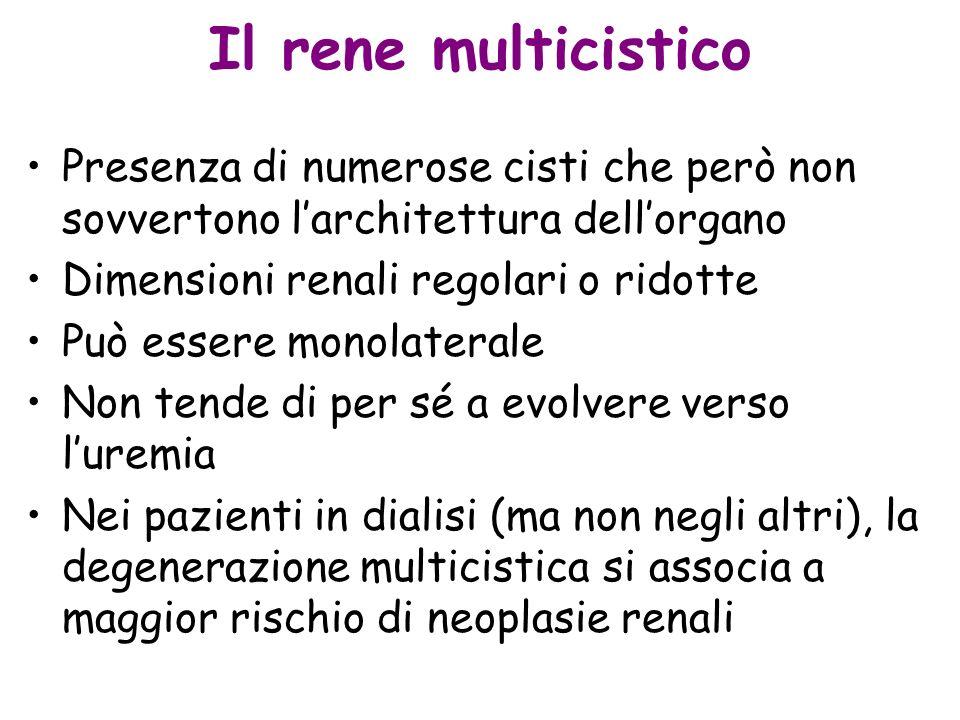 Il rene multicistico Presenza di numerose cisti che però non sovvertono larchitettura dellorgano Dimensioni renali regolari o ridotte Può essere monol