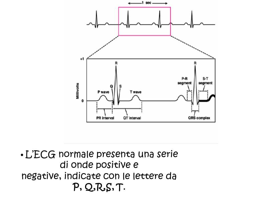LECG normale presenta una serie di onde positive e negative, indicate con le lettere da P, Q,R,S, T.