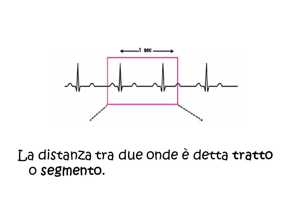 La distanza tra due onde è detta tratto o segmento.
