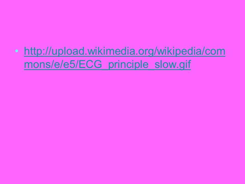 http://upload.wikimedia.org/wikipedia/com mons/e/e5/ECG_principle_slow.gifhttp://upload.wikimedia.org/wikipedia/com mons/e/e5/ECG_principle_slow.gif