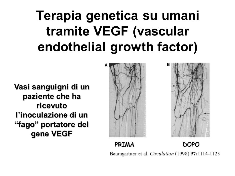 Terapia genetica su umani tramite VEGF (vascular endothelial growth factor) Baumgartner et al. Circulation (1998) 97:1114-1123 DOPO Vasi sanguigni di