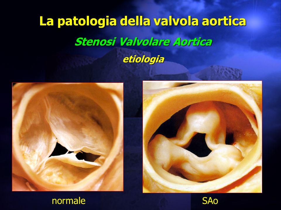 La patologia della valvola aortica Stenosi Valvolare Aortica etiologia normaleSAo