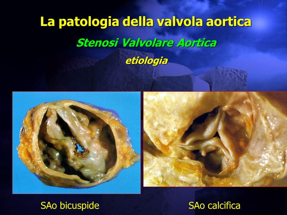 La patologia della valvola aortica Stenosi Valvolare Aortica etiologia SAo bicuspideSAo calcifica