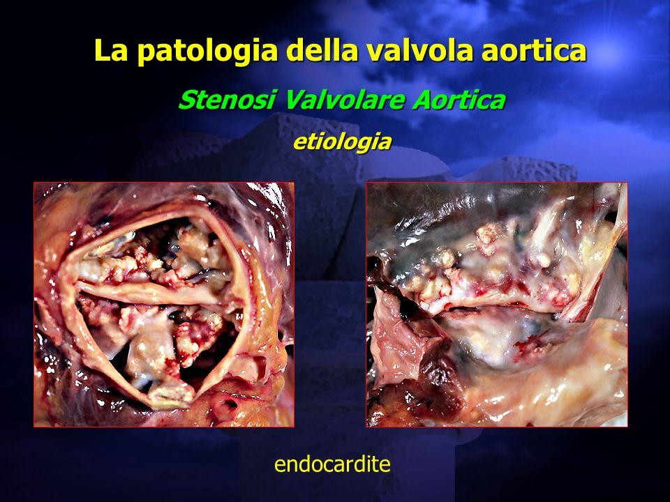 La patologia della valvola aortica Stenosi Valvolare Aortica etiologia endocardite