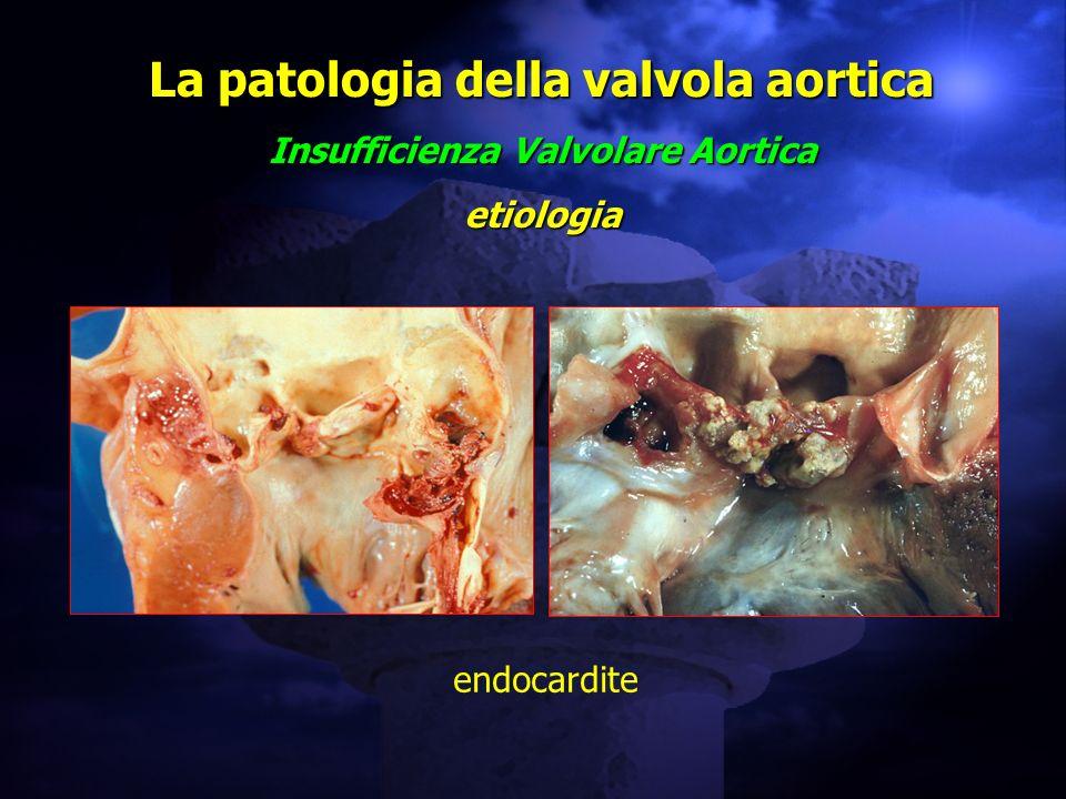 La patologia della valvola aortica Insufficienza Valvolare Aortica etiologia endocardite