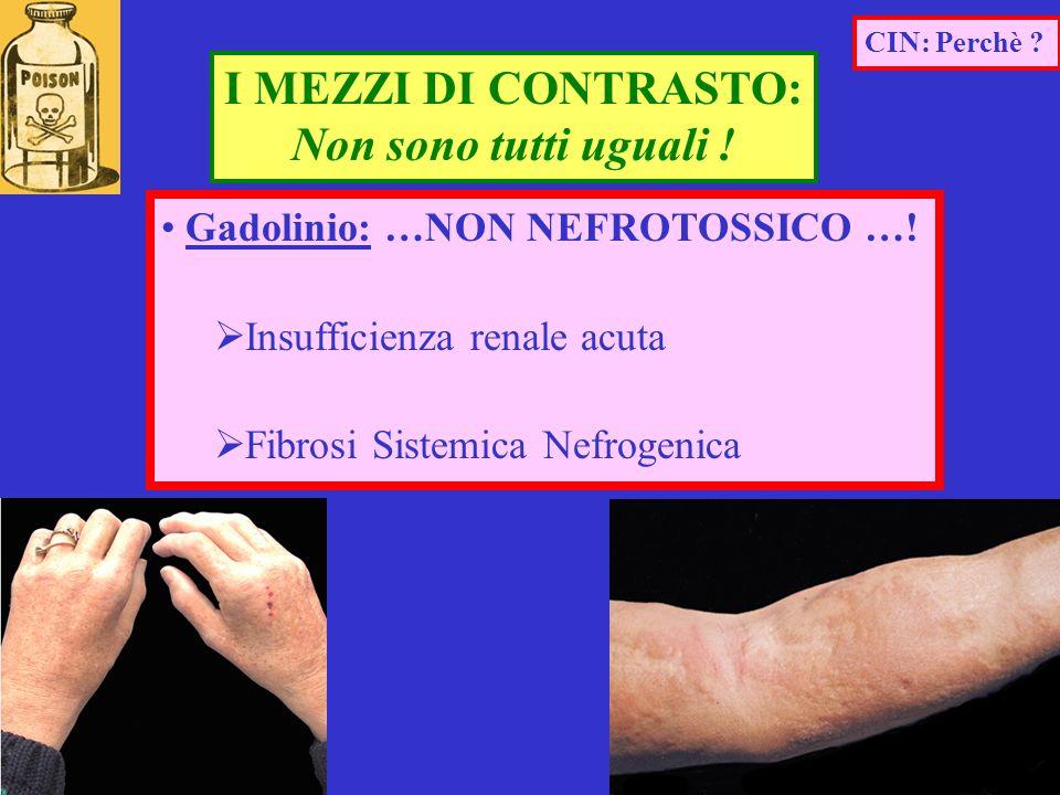 Gadolinio: …NON NEFROTOSSICO …! Insufficienza renale acuta Fibrosi Sistemica Nefrogenica I MEZZI DI CONTRASTO: Non sono tutti uguali ! CIN: Perchè ?