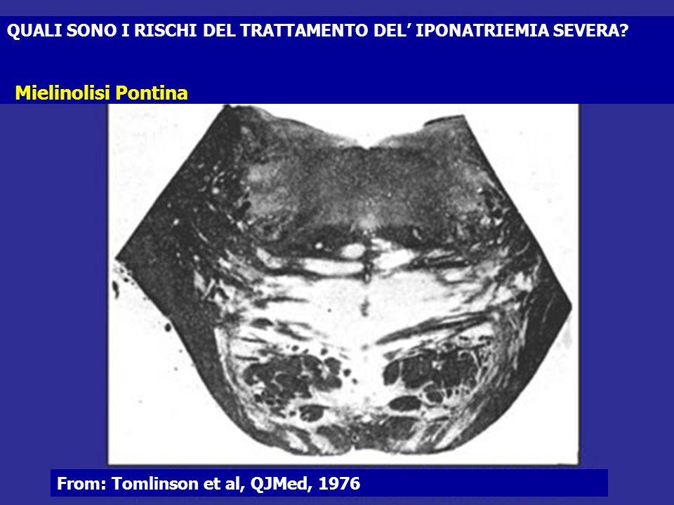 QUALI SONO I RISCHI DEL TRATTAMENTO DEL IPONATRIEMIA SEVERA? From: Tomlinson et al, QJMed, 1976 Mielinolisi Pontina