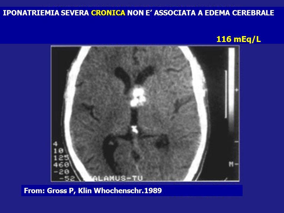 CRONICA IPONATRIEMIA SEVERA CRONICA NON E ASSOCIATA A EDEMA CEREBRALE From: Gross P, Klin Whochenschr.1989 116 mEq/L