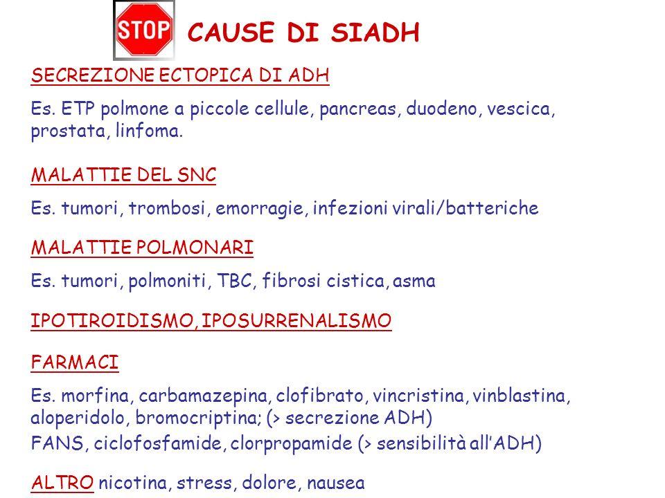 CAUSE DI SIADH SECREZIONE ECTOPICA DI ADH Es. ETP polmone a piccole cellule, pancreas, duodeno, vescica, prostata, linfoma. MALATTIE DEL SNC Es. tumor