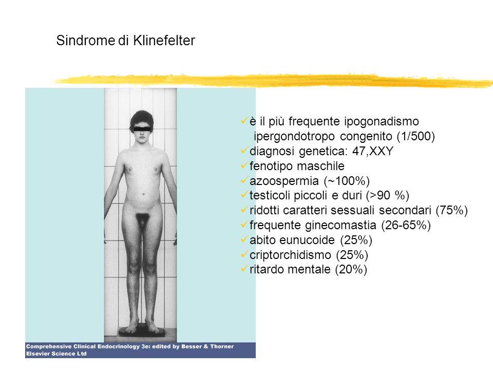 Sindrome di Klinefelter è il più frequente ipogonadismo ipergondotropo congenito (1/500) diagnosi genetica: 47,XXY fenotipo maschile azoospermia (~100