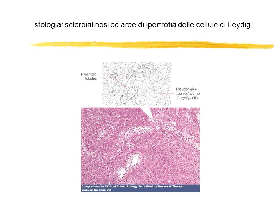 Istologia: scleroialinosi ed aree di ipertrofia delle cellule di Leydig