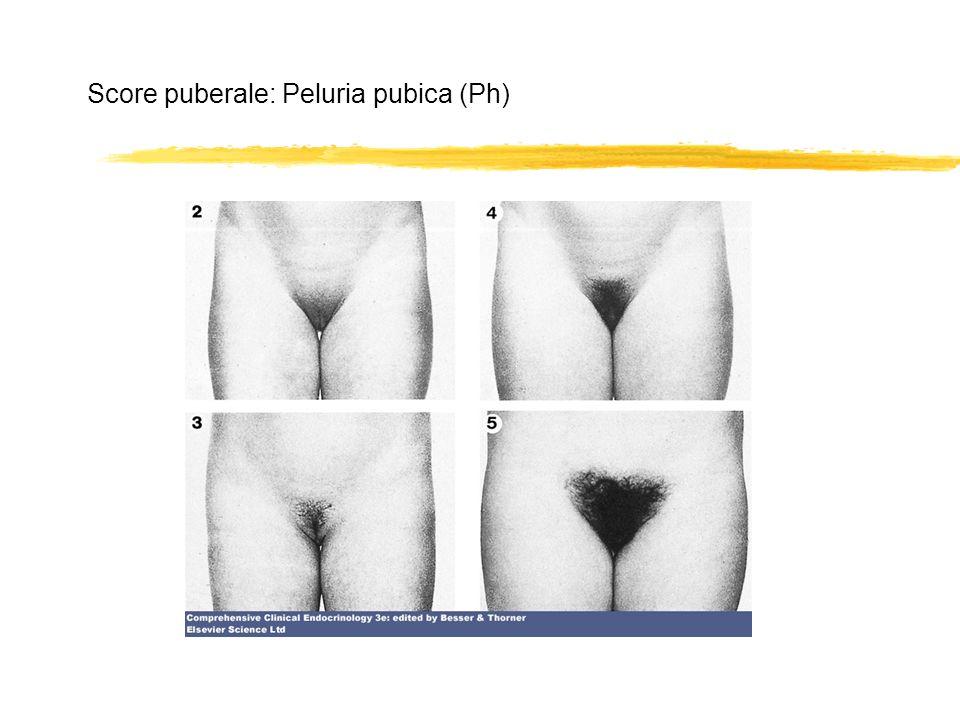 Score puberale: Peluria pubica (Ph)