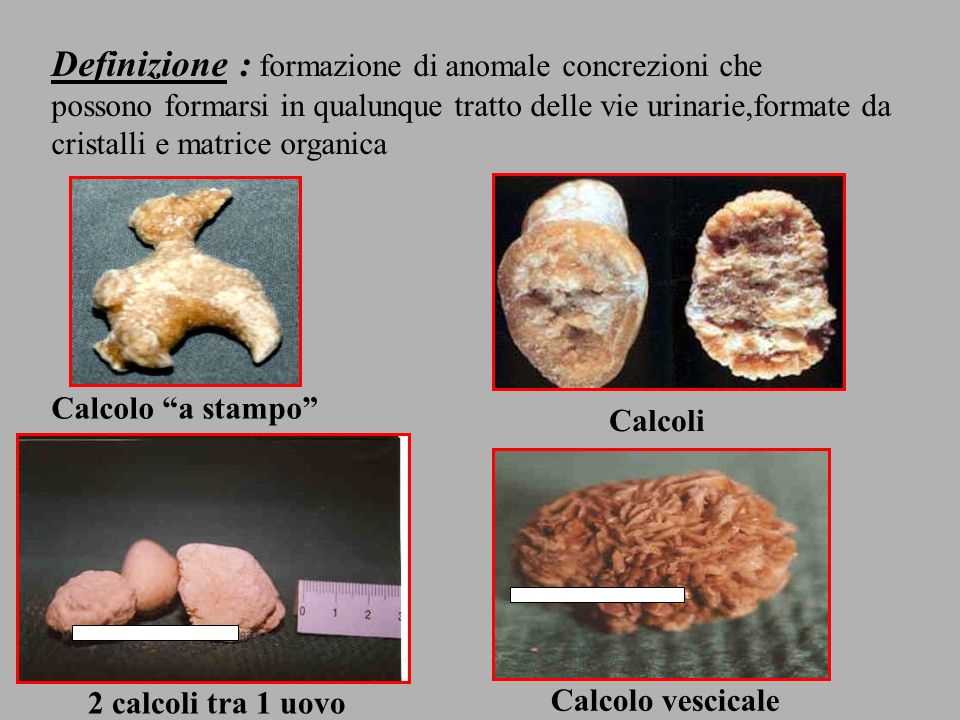 Definizione : formazione di anomale concrezioni che possono formarsi in qualunque tratto delle vie urinarie,formate da cristalli e matrice organica Ca