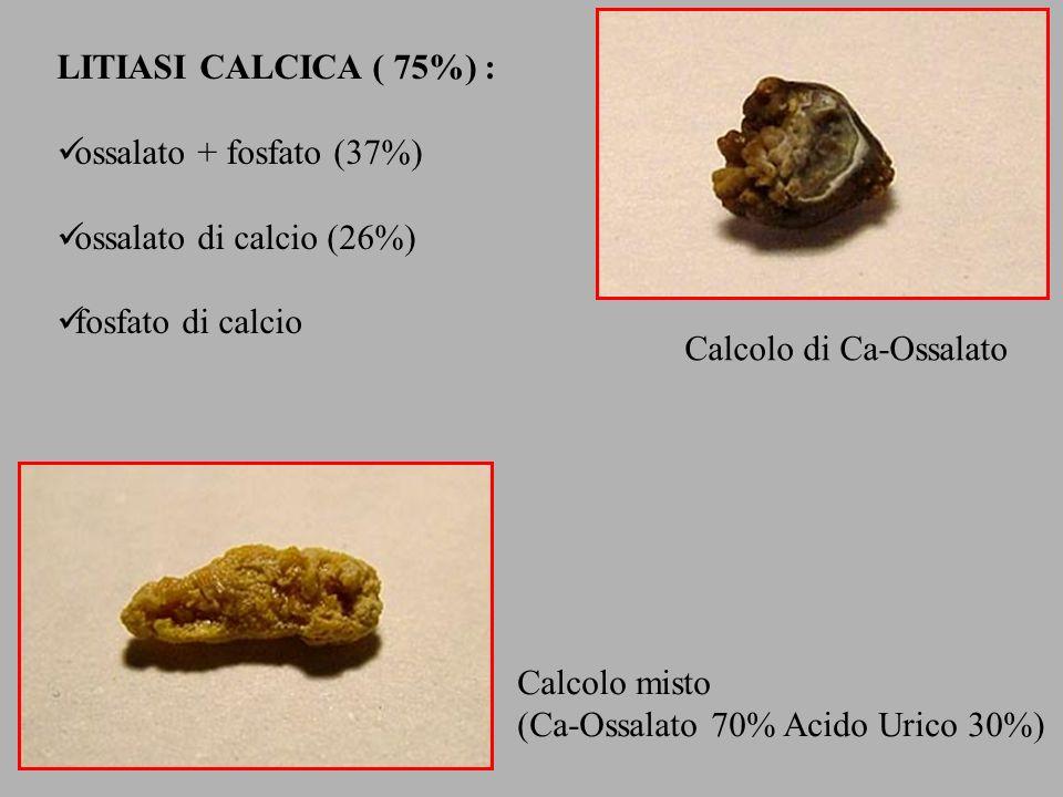 LITIASI CALCICA ( 75%) : ossalato + fosfato (37%) ossalato di calcio (26%) fosfato di calcio Calcolo di Ca-Ossalato Calcolo misto (Ca-Ossalato 70% Aci