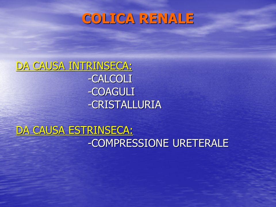 COLICA RENALE DA CAUSA INTRINSECA: -CALCOLI -COAGULI -COAGULI -CRISTALLURIA -CRISTALLURIA DA CAUSA ESTRINSECA: -COMPRESSIONE URETERALE