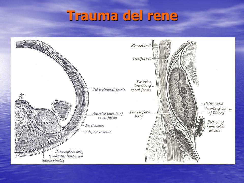 Traumi Uretrali QUADRO CLINICO uretrorragia uretrorragia ritenzione acuta durina ritenzione acuta durina globo vescicale palpabile globo vescicale palpabile In presenza di un trauma perineale o pelvico: risalita della prostata allesplorazione rettale risalita della prostata allesplorazione rettale ematomi penieni, scrotali e perineali ematomi penieni, scrotali e perineali