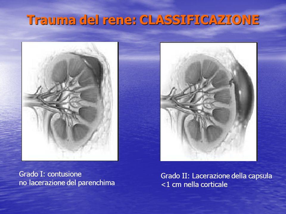 Trauma del rene: CLASSIFICAZIONE Grado III: lacerazione del parenchima >1cm senza lacerazione caliceale Grado IV: Lacerazione del parenchima con lesione della via escretrice