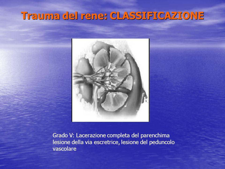 Trauma del rene: CLASSIFICAZIONE Grado V: Lacerazione completa del parenchima lesione della via escretrice, lesione del peduncolo vascolare