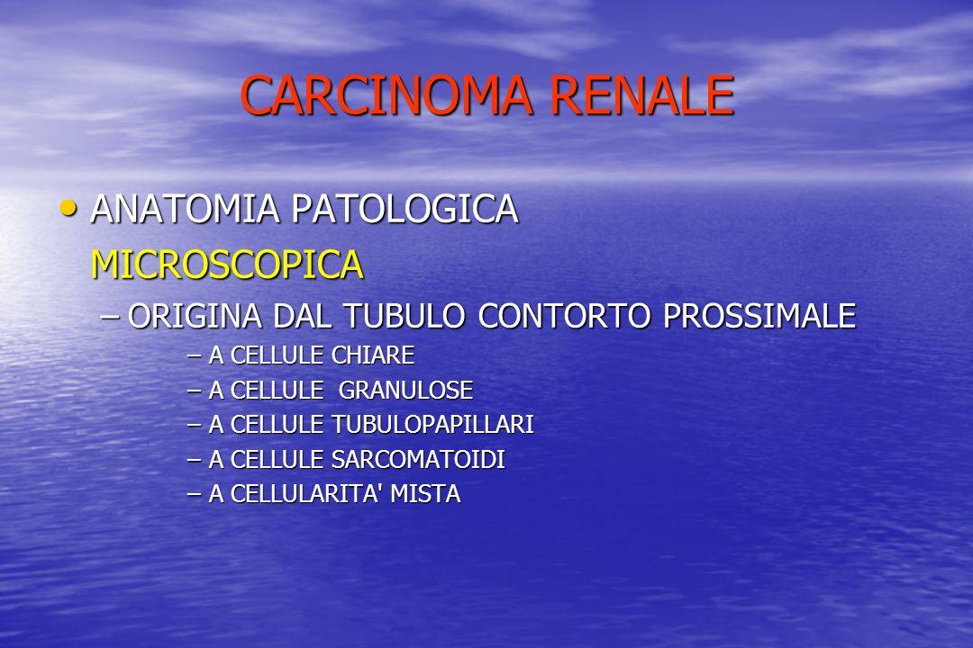 CARCINOMA RENALE ANATOMIA PATOLOGICA ANATOMIA PATOLOGICAMICROSCOPICA –ORIGINA DAL TUBULO CONTORTO PROSSIMALE –A CELLULE CHIARE –A CELLULE GRANULOSE –A