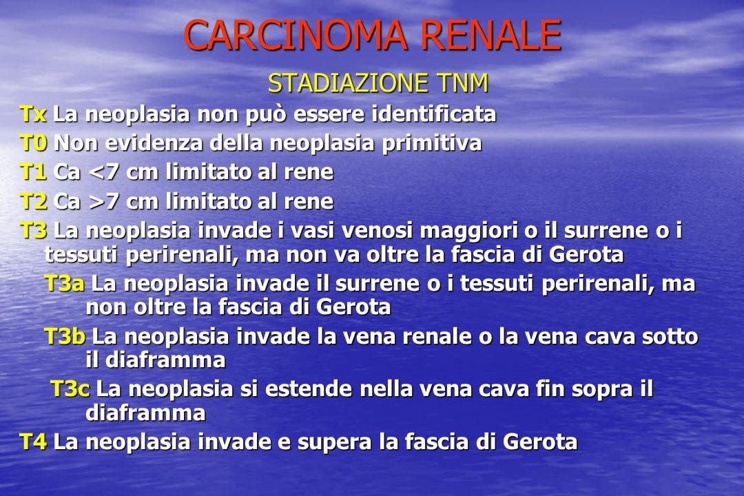 CARCINOMA RENALE STADIAZIONE TNM Tx La neoplasia non può essere identificata T0 Non evidenza della neoplasia primitiva T1 Ca <7 cm limitato al rene T2