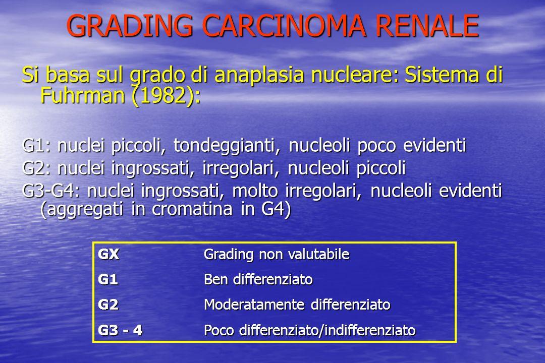 GRADING CARCINOMA RENALE Si basa sul grado di anaplasia nucleare: Sistema di Fuhrman (1982): G1: nuclei piccoli, tondeggianti, nucleoli poco evidenti