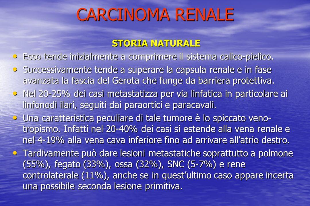 CARCINOMA RENALE STORIA NATURALE Esso tende inizialmente a comprimere il sistema calico-pielico. Esso tende inizialmente a comprimere il sistema calic