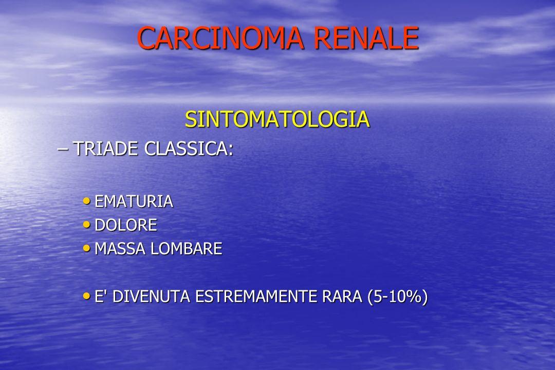CARCINOMA RENALE SINTOMATOLOGIA –TRIADE CLASSICA: EMATURIA EMATURIA DOLORE DOLORE MASSA LOMBARE MASSA LOMBARE E' DIVENUTA ESTREMAMENTE RARA (5-10%) E'