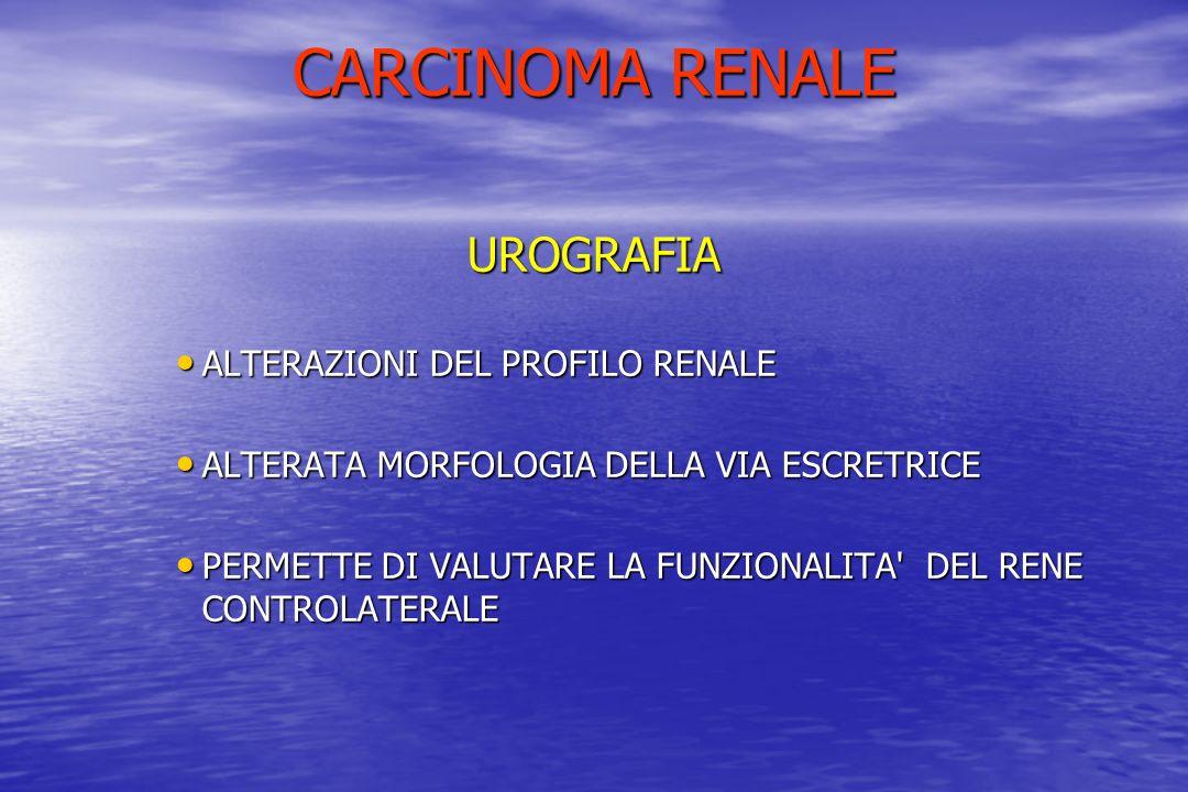 CARCINOMA RENALE UROGRAFIA ALTERAZIONI DEL PROFILO RENALE ALTERAZIONI DEL PROFILO RENALE ALTERATA MORFOLOGIA DELLA VIA ESCRETRICE ALTERATA MORFOLOGIA