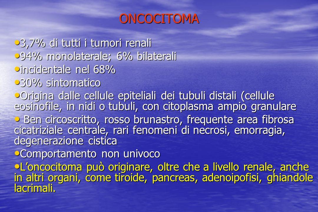 ONCOCITOMA 3,7% di tutti i tumori renali 3,7% di tutti i tumori renali 94% monolaterale; 6% bilaterali 94% monolaterale; 6% bilaterali incidentale nel