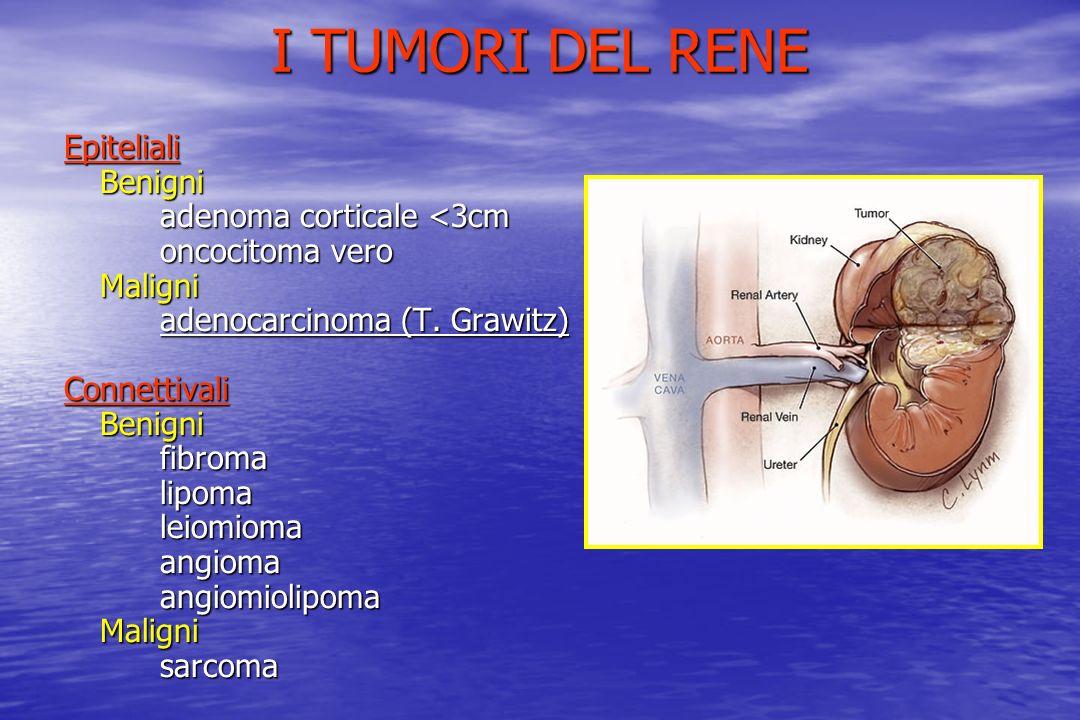 I TUMORI DEL RENE EpitelialiBenigni adenoma corticale <3cm oncocitoma vero Maligni adenocarcinoma (T. Grawitz) ConnettivaliBenignifibromalipomaleiomio