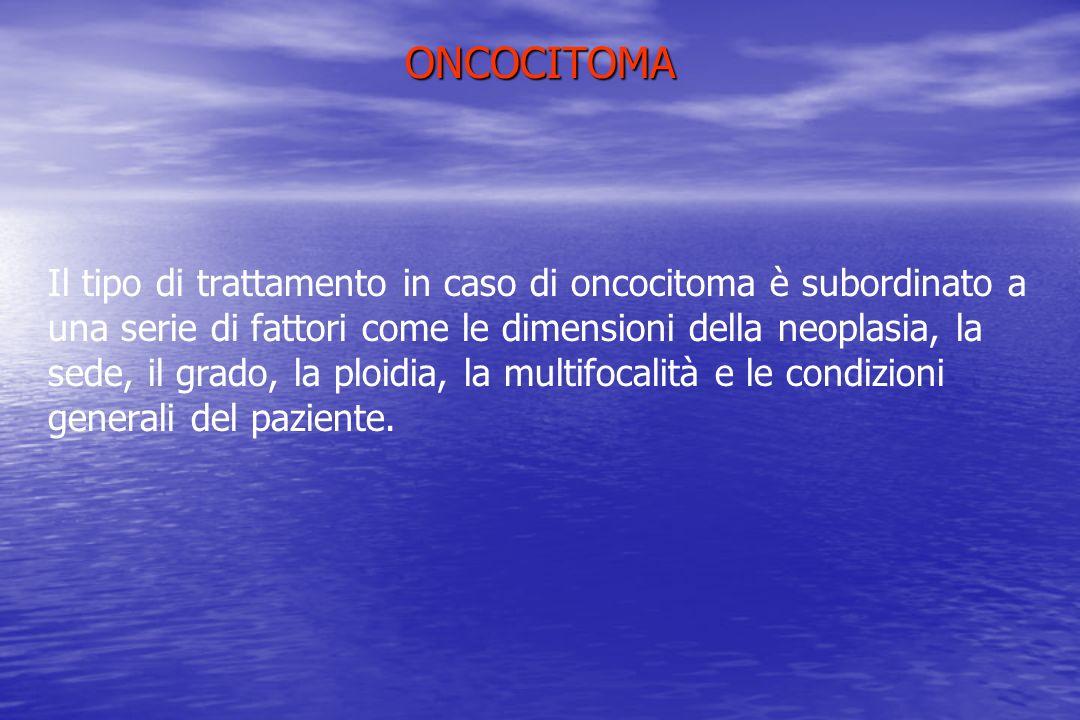 ONCOCITOMA Il tipo di trattamento in caso di oncocitoma è subordinato a una serie di fattori come le dimensioni della neoplasia, la sede, il grado, la