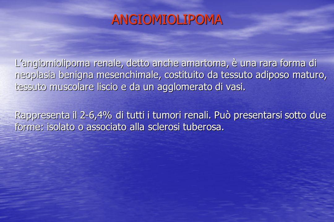 ANGIOMIOLIPOMA Langiomiolipoma renale, detto anche amartoma, è una rara forma di neoplasia benigna mesenchimale, costituito da tessuto adiposo maturo,