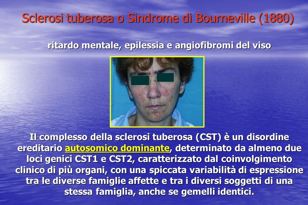 Sclerosi tuberosa o Sindrome di Bourneville (1880) ritardo mentale, epilessia e angiofibromi del viso Il complesso della sclerosi tuberosa (CST) è un